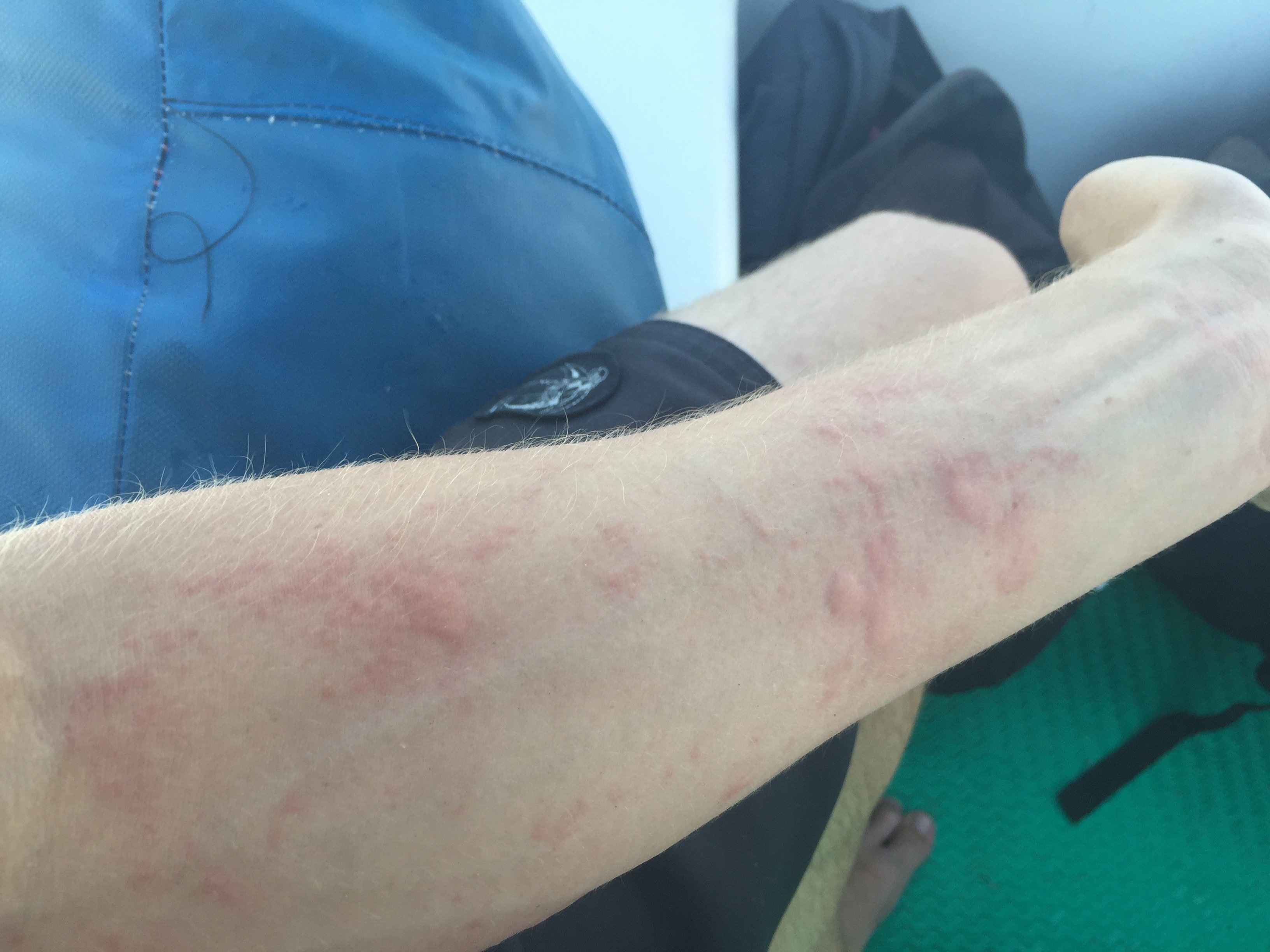 A forearm covered in jellyfish stings.